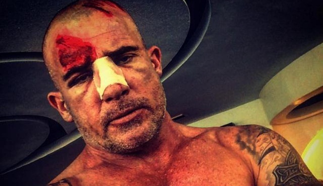 Hollywood Dedikoduları: Dominic Purcell'in, Prison Break setinde burnu kırıldı